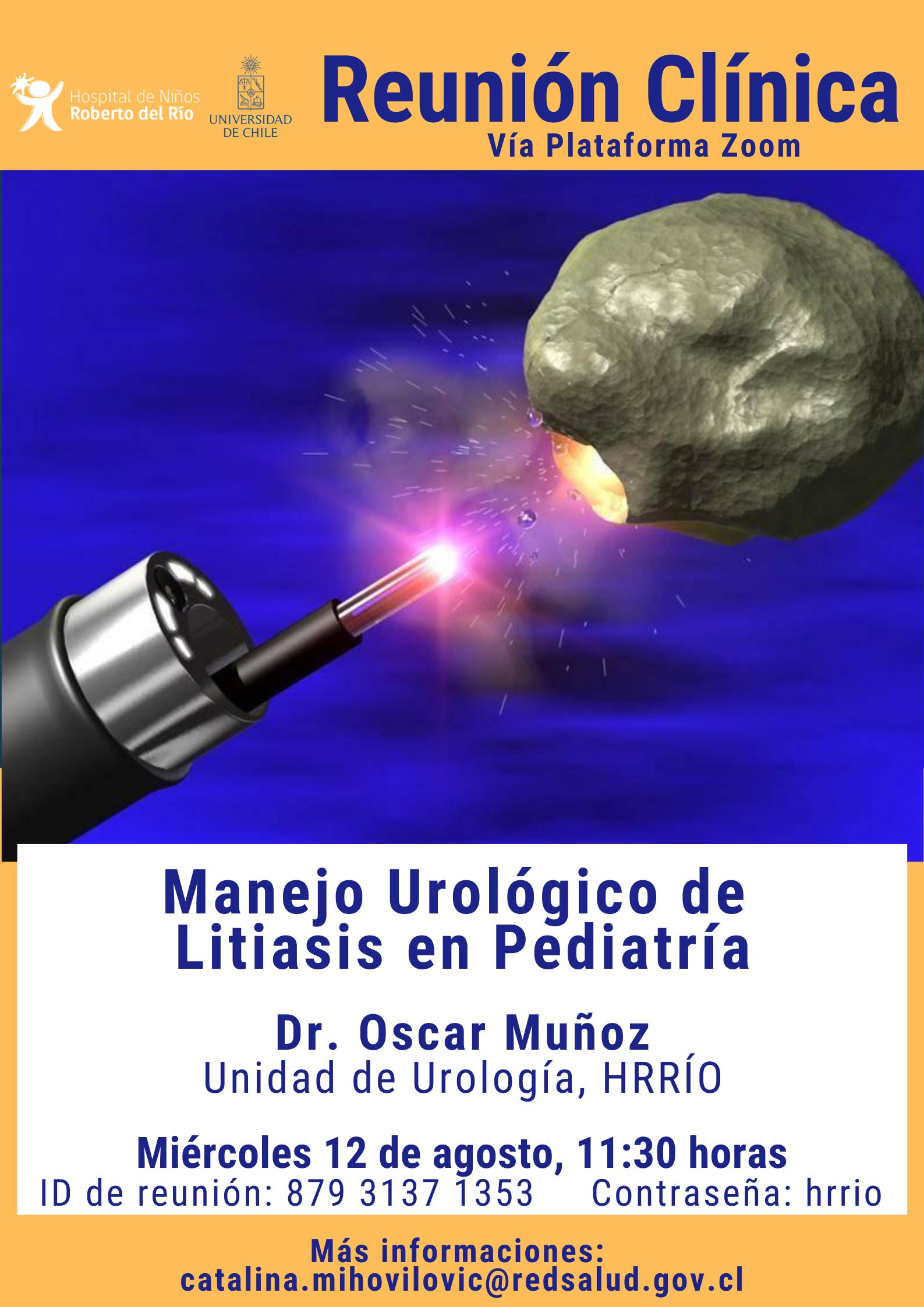 """Tema: """"Manejo Urológico de  Litiasis en Pediatría"""""""
